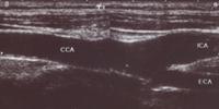 動脈硬化の見られない血管