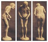 パーキンソン病の写真
